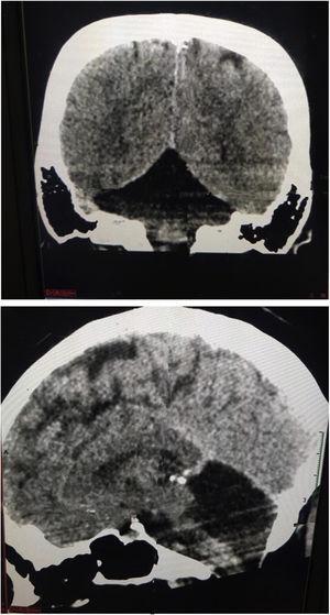 A y B, en la tomografía cerebral en vista coronal y sagital se evidencia agenesia de hemisferios cerebelosos bilateral en paciente con síndrome de Joubert.