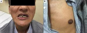 Paciente que presenta hiperpigmentación gingival (A) y mamilar (B).