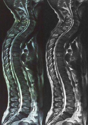 Resonancia magnética con ventana panorámica de la médula espinal.