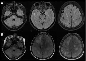 Resonancia magnética cerebral inicial y de control. A: realizada a los nueve meses de inicio de los síntomas. Secuencia FLAIR con numerosas lesiones hiperintensas localizadas en lóbulo frontal, parietal y temporal, además del puente. B: realizada a los 11 meses de inicio de síntomas. Observamos comparativamente un aumento en el número y tamaño de las lesiones hiperintensas en secuencia FLAIR.