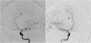 Angiografía cerebral con vasculitis. Angiografía cerebral, evidencia de estrechamientos irregulares segmentarios focales (flechas), compatibles con patrón en rosario sutil, sugestivo de vasculitis.