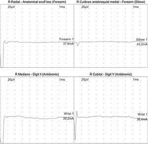Neuroconducciones sensitivas con ausencia de respuesta en la extremidad superior derecha.