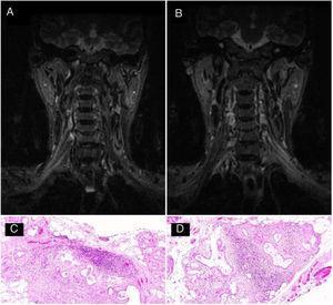 A y B) Resonancia de plexo braquial en secuencia STIR que evidencia aumento de señal en los trayectos posganglionares de ambas raíces C6-C7, troncos bilaterales y de las divisiones supraclaviculares. C y D) Biopsia de glándula salivar menor con formación de dos agregados linfoides de más de 50 células (tinción hematoxilina-eosina).