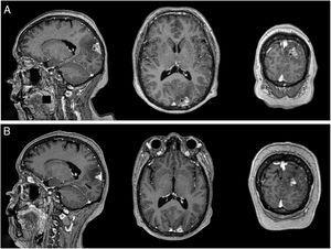 RM cerebral con contraste. A) Imagen prerradioterapia. Lesión extraaxial a nivel parieto-occipital izquierdo con amplia base meníngea, que mide 25×15×13,5mm en coronal, antero-posterior y transversal respectivamente, de bordes regulares y lobulados con significativo realce heterogéneo con el contraste, se proyecta hacia parénquima cerebral adyacente condicionando significativo edema local con predominio en el lóbulo parietal. B) Imagen posradioterapia de 10 meses. Lesión captadora de contraste a nivel de región occipital izquierda de 17×11mm, asociado a edema vasogénico.