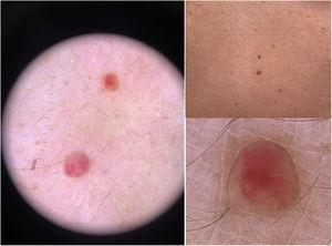 Hemangiomas glomerulares.