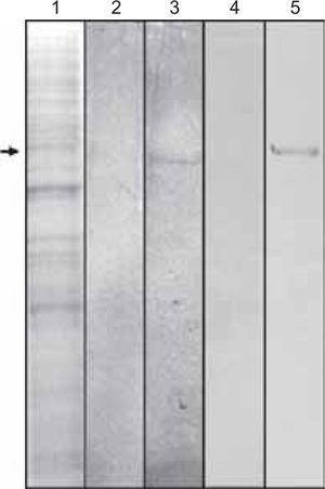 Se observa en la línea 1 la tinción con Coomassie azul de las proteínas expresadas por las células de Drosophila melanogaster y transfectadas con el gen de la proteína del cemento. La flecha indica la especie de 50 kDa. La línea 2 representa el control negativo de células que no expresan constitutivamente el gen de la proteína del cemento. La línea 3 nos muestra el reconocimiento de una banda de 50 kDa por medio del anticuerpo anti-6Xhis. La línea 4 representa el control negativo utilizando el anticuerpo recombinante contra la proteína del cemento. La línea cinco muestra una banda de 50 kDa reconocida por el anticuerpo antiproteína del cemento.