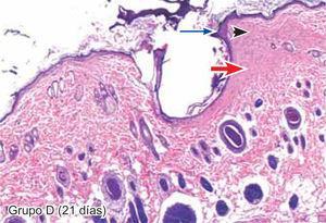 Tejido suturado con SNT. Se aprecia infiltrado polimorfonuclear leve (cabeza de flecha), tejido conectivo denso (flecha gruesa) y engrosamiento de la epidermis (flecha larga) (4X).