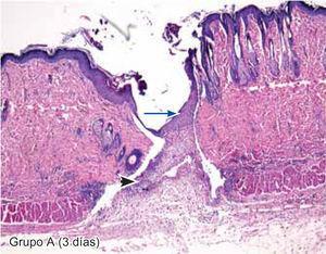 Tejido sintetizado empleando CAC-B. Se observa engrosamiento de la epidermis (flecha larga) e infiltrado polimorfonuclear moderado (cabeza de flecha) (4X).