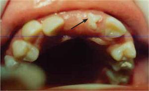Retención del incisivo central superior derecho, presencia de un diente de forma irregular, en malposición dentaria.
