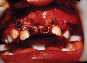 Ligado de los centrales permanentes para su tracción ortodóntica, sutura del colgajo.