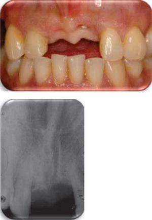 Se observan los tejidos gingivales aceptables y radiográficamente se observa buena densidad ósea.