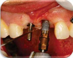 Colocación de los implantes Nobel Replace® Ti U de 3.5x13mm.
