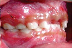 Lateral derecha. Fístula a nivel de órgano dentario 54 (flecha).