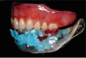Observe cómo la impresión obtenida se articula con la prótesis superior.