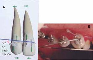 Esquema (A) y foto (B) que ilustra la colocación del bracket con la angulación de 30° hacia distal respecto al plano oclusal del paciente.