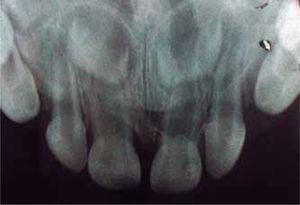 Radiografía final que ya no muestra la existencia de algún otro diente supernumerario.