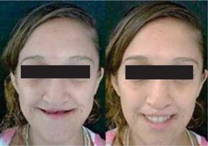 Compensación de la dimensión vertical. Aspecto de la paciente sin prótesis (izquierda) y con prótesis (derecha).