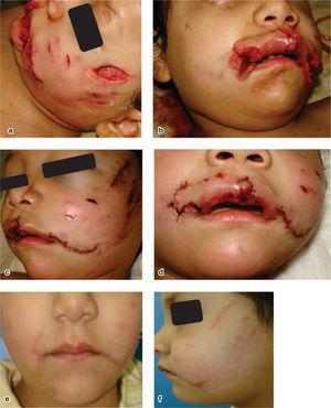 Paciente femenino de 4 años, con herida por mordedura de perro abarcando dos tercios faciales, a) y b) posteriores a la agresión, c) y d) posteriores a lavado cierre primario y e) y f) control a cuatro meses.