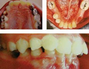 Características intraorales. Intraoralmente, los pacientes con X frágil se relacionan con alto índice de caries debido a un déficit de higiene, además de mal posición dental, debida a las anomalías craneoencefálicas que presenta.
