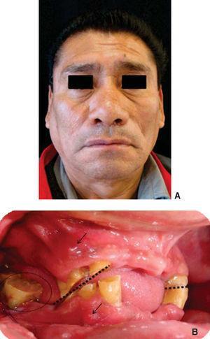 A) Fotografía frontal (obsérvese la asimetría facial del lado derecho) y B) Fotografía intraoral. Se identifica el plano oclusal irregular (líneas punteadas), las fístulas (flechas) y el sangrado debido a las condiciones periodontales (óvalo).