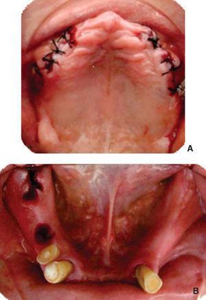 Procedimientos quirúrgicos. A) Regularización del proceso maxilar y extracciones de dientes 15, 14, 13, 23, 24, 25; B) Extracciones de los dientes 45, 47 y 48.