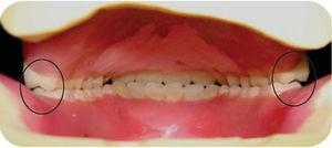 Vista posterior de la dentadura en cera. Obsérvese que únicamente contactan las cúspides palatinas (círculos).