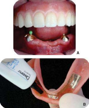 Activación de aditamentos. A) Dentadura maxilar insertada y hembra de aditamento derecho colocada para su activación; B) Superficie intaglio de la dentadura mandibular.