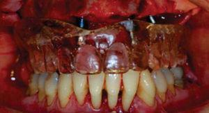 Guía quirúrgica colocada previsualizando la posición de los implantes.