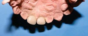 Coronas de nano-resina híbrida. Vista posterior.