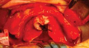 Exposición de proceso alveolar maxilar.