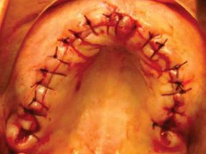 Sutura de mucosa alveolar.