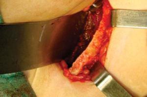 Lecho quirúrgico.