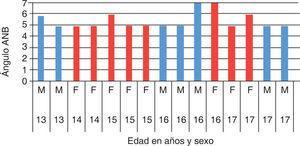 Distribución del ángulo ANB en los individuos estudiados por edad y sexo. F = Femenino, M = Masculino.