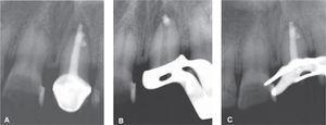 Imágenes radiográficas. A) Radiografía inicial. B y C) Radiografías del retratamiento.