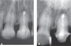 Imágenes radiográficas. A) El día de la cirugía. B) Radiografía de control 6 meses después de la cirugía mostrando disminución del tamaño de la lesión ósea.