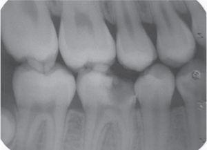 Imagen radiográfica que muestra la ausencia de afección del hueso subyacente.