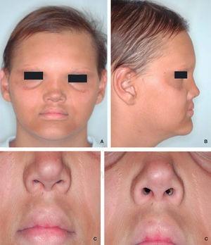 Signos característicos de DEH. A. Se puede observar cabellos y cejas escasas, hiperpigmentación perioral y periorbital. B. Se muestra puente nasal y labios prominentes. C. Arrugas perioral y periorbitales.