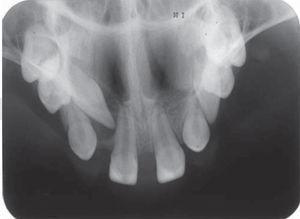 Radiografía oclusal de maxila que muestra la disposici´n de piezas dentarias presentes dentro del arco.
