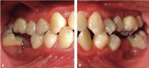 Clinical picture: right lateral clinical picture (A) and left lateral clinical picture (B) with oral rehabilitation.