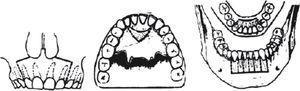 Osteotomías de Köle por bloques óseos.8