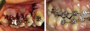 Se recomienda la colocación de la aparatología una semana antes de la corticotomía.12