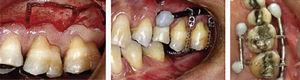 Se realiza la corticotomía en el molar a intruir para su posterior colocación de resorte de níqueltitanio.7
