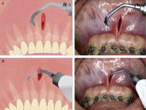 Procedimiento quirúrgico con la microsierra piezoeléctrica.6