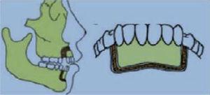 Osteotomía perisegmental por Chung.4