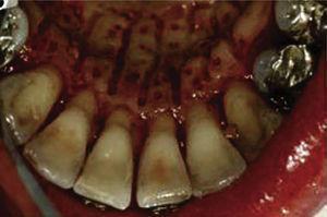 Perforaciones sobre la raíz del diente.3