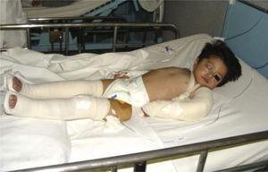 Paciente con fijación de fracturas en extremidades superiores e inferiores.