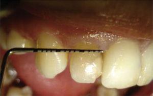 Diastema entre OD 12 y 13.
