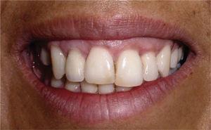 Prótesis definitiva implanto-soportada en zona del diente 12.