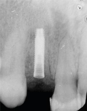 Implante 3i® Osseotite Certain Miniimplant 3.25×15mm de longitud.