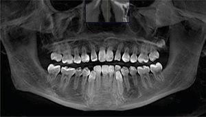 Ortopantomografía que muestra la ubicación de la lesión y estructuras involucradas en ella.